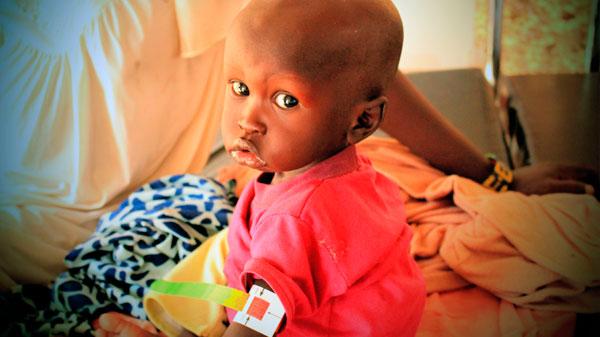 John es de Sudán del Sur. Llegó a una de nuestros centros de tratamiento del cólera.