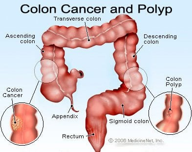 http://images.medicinenet.com/images/illustrations/colon_cancer.jpg
