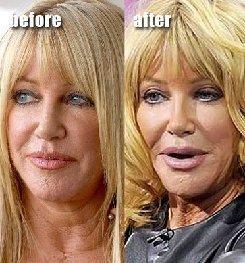 https://4.bp.blogspot.com/-QbVWnF1Bxeo/UH1xqYuoDMI/AAAAAAAAeWU/2KYX8kvRaNo/s1600/r%20plastic-surgery-facial-fillers-Awful-plastic-surgeryMA29085482-0034.jpg