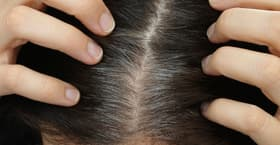 New research has offered intriguing new insights into the process of graying hair, and also shown how it might be reversed through alleviating stress