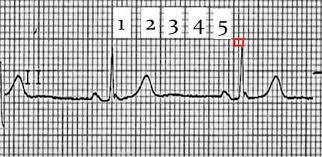 Cómo Calcular la Frecuencia Cardíaca - Cerebromedico