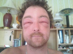 Photo d'une réaction allergique suite à une piqûre de frelon asiatique
