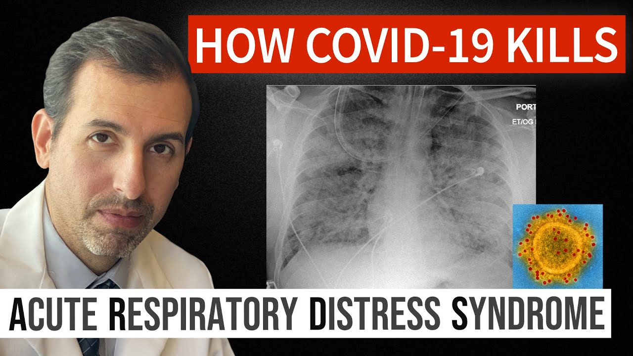 How Coronavirus Kills: Acute Respiratory Distress Syndrome (ARDS ...