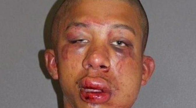Jesolo: Bar bleibt nach Prügelei mit tunesischem Drogendealer geschlossen