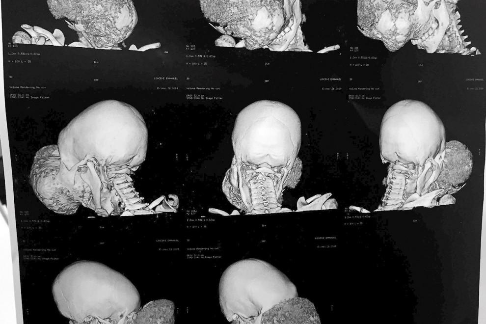 El tumor cráneo facial no maligno formaba una masa mas grande que su propia cabeza a Emmanuel   EFE